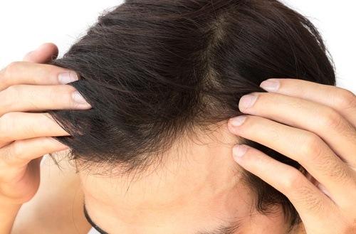 صورة علاج الشعر الجاف , افضل الطرق لعلاج الشعر الجاف