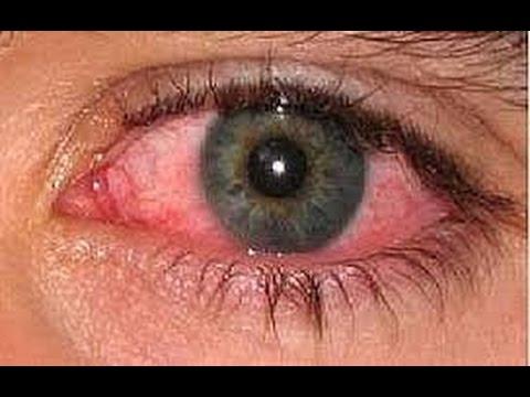 صورة علاج حساسية العين , تعرف على الخطوات