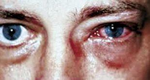 صور علاج حساسية العين , تعرف على الخطوات