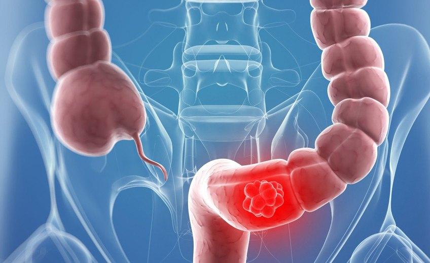 صورة اعراض التهاب القولون , علاج القولون واعراضه