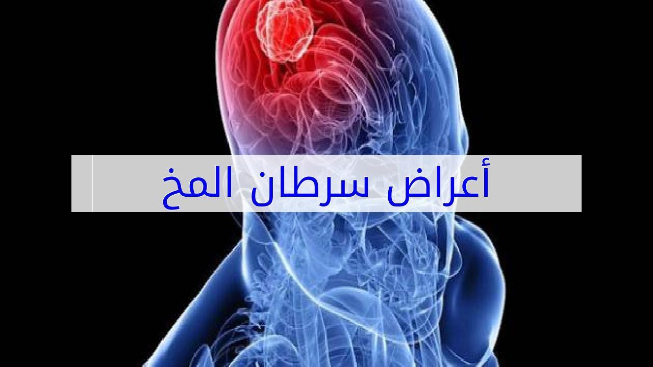 صورة اعراض سرطان الدماغ , واحدث العلاجات لهذا المرض