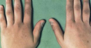 مرض اديسون , اهم اعراضه وطرق علاجه