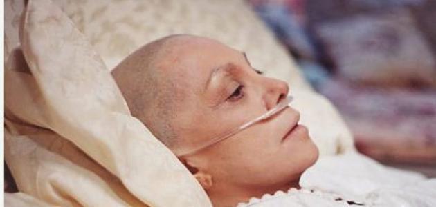صورة اعراض السرطان المبكرة , علامات بداية مرض السرطان