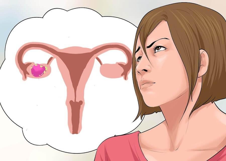 صورة اعراض تكيس المبايض , من اسباب تكيس المبايض واعراضه
