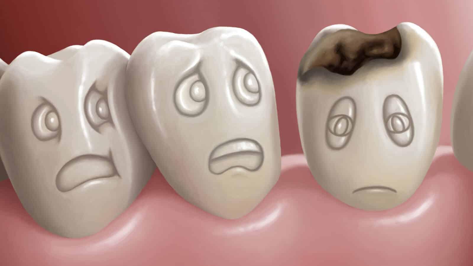صورة علاج تسوس الاسنان , واسباب وعلاج تسوس الانسان