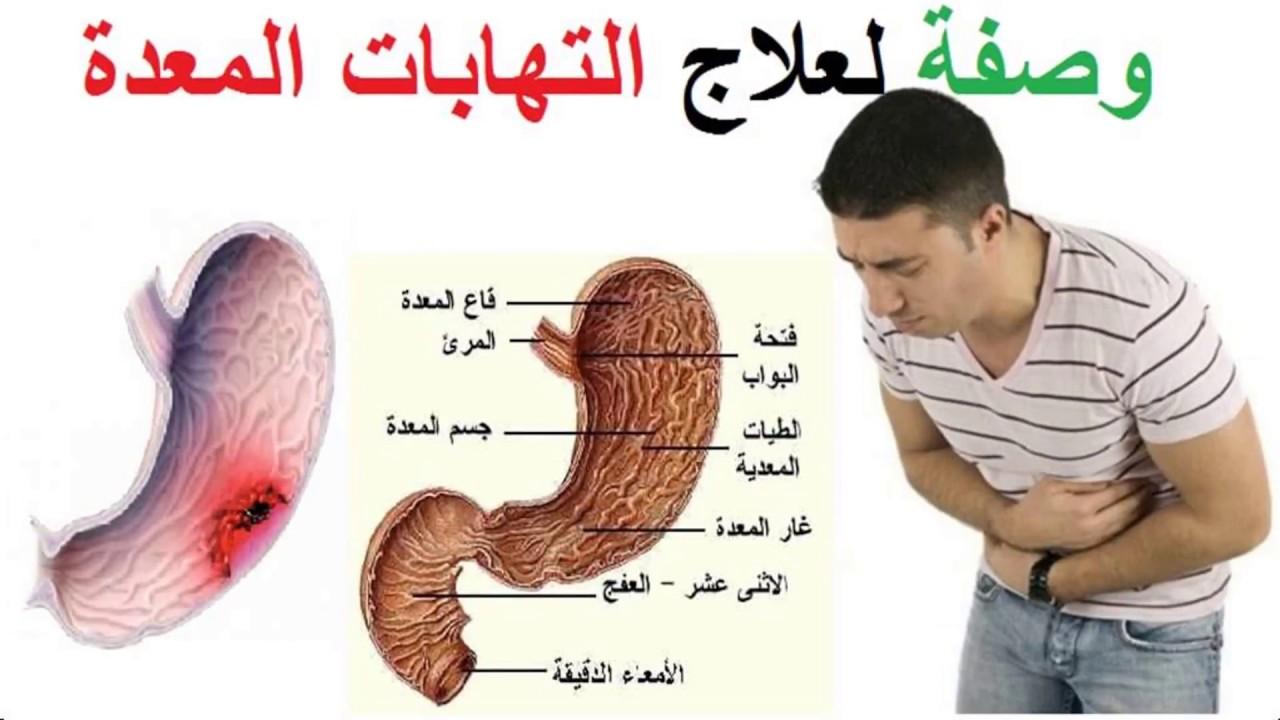 صورة اعراض قرحة المعدة , وصفات طبيعية لعلاج قرحة المعدة