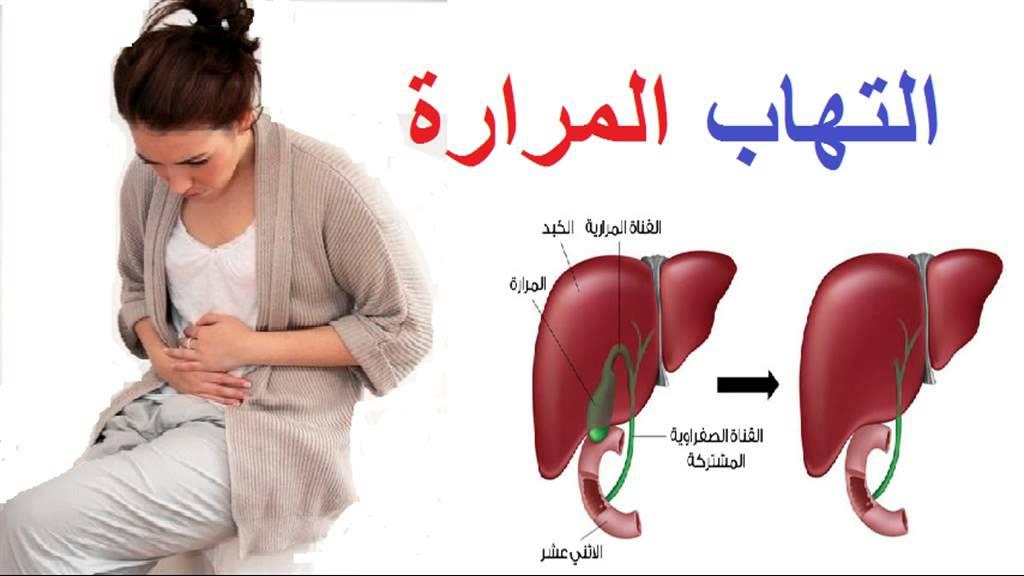 صورة اعراض المرارة , ماهى اعراض مرض المراره ؟