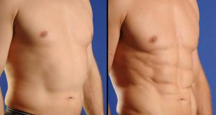 صور عملية نحت الجسم , احدث عمليات نحت الجسم