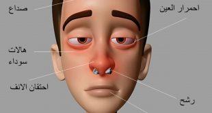 صورة علاج حساسية الانف , الاعراض و الوقايه و العلاج لحساسيه الانف