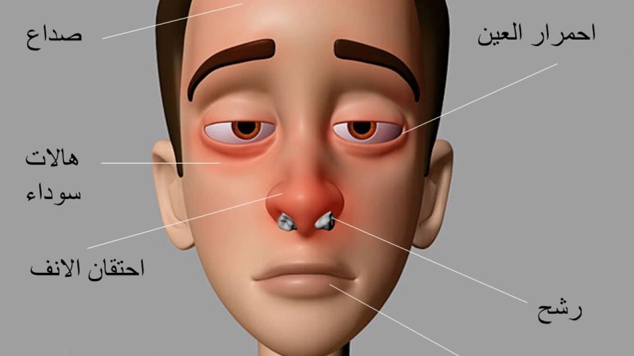 صور علاج حساسية الانف , الاعراض و الوقايه و العلاج لحساسيه الانف