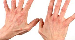 صورة اعراض الصدفية , كيف تعرف مرض الصدفية