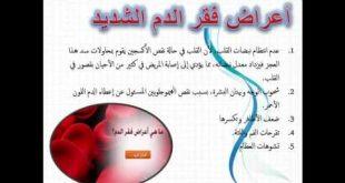 صور اعراض فقر الدم , اسباب مرض فقر الدم