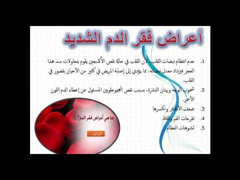 صورة اعراض فقر الدم , اسباب مرض فقر الدم