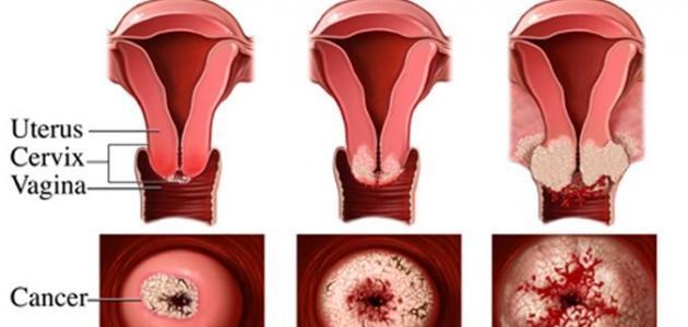 صور اعراض سرطان الرحم , اخطر الامراض فى العالم