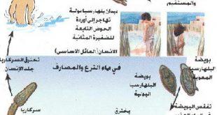 صور مرض البلهارسيا , اخطر واشهر الامراض