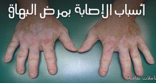 صورة اسباب البهاق , كيفية تشخيص مرض البهاق والاسباب المؤدية له