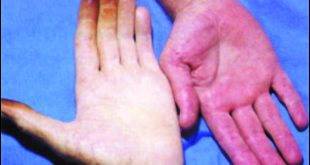 صورة مرض فقر الدم , اسباب فقر الدم