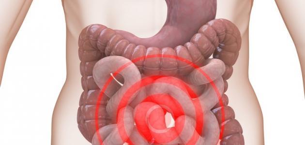 صورة اسباب القولون العصبي , سبب الاصابة بالقولون
