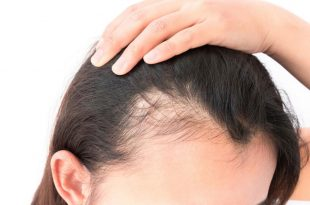 صور علاج لتساقط الشعر , زينه المراه والاهتمام وحل تساقط الشعر