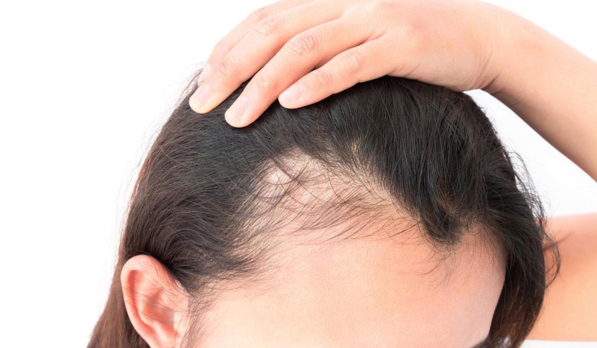 صورة علاج لتساقط الشعر , زينه المراه والاهتمام وحل تساقط الشعر