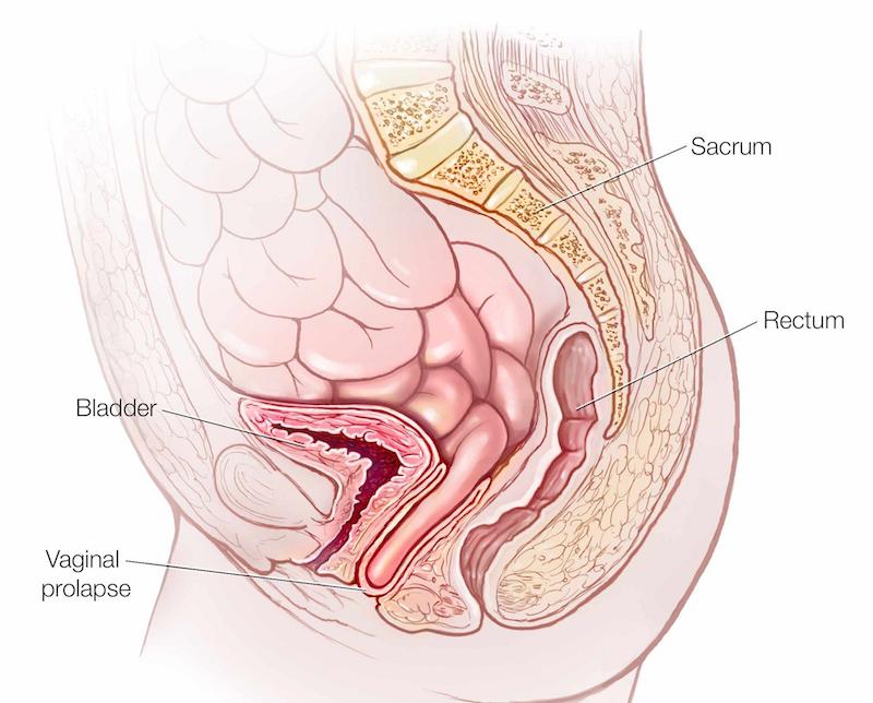صورة اسباب العقم , العقم من له اسباب عديديه مختلفه عند الرجال والنساء