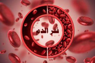 صورة علاج فقر الدم , علاج مذهل وطبيعى 100%