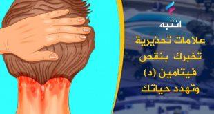 صورة اعراض نقص فيتامين د، له الكثير من الأعراض