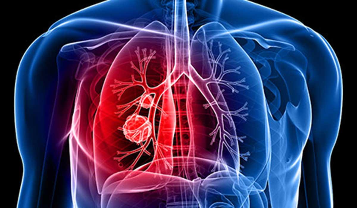 صورة اعراض سرطان الرئة , له اعرض كثيرة 5940 2