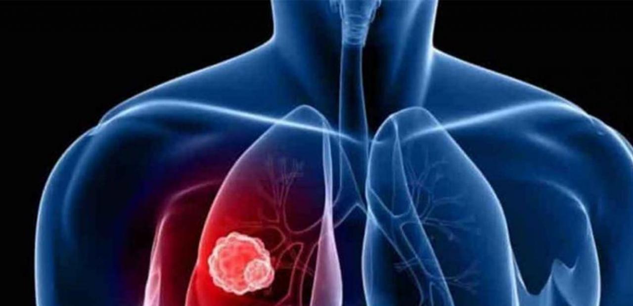 صورة اعراض سرطان الرئة , له اعرض كثيرة 5940 3