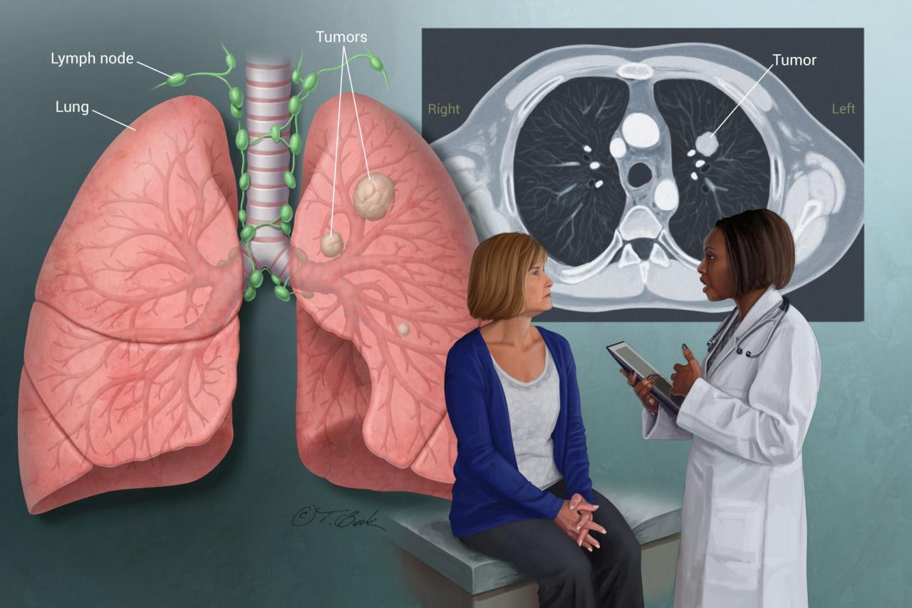 صورة اعراض سرطان الرئة , له اعرض كثيرة 5940