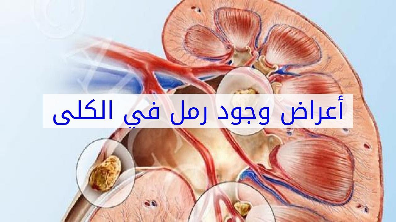 صورة اعراض الكلى، لها الكثير من الأعراض